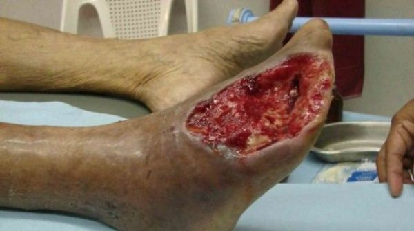 flesh-eating_drug_krokodil_0