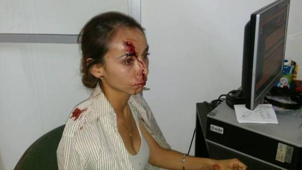 The brutal assault left Karla Silva in hospital with cerebral edema and problems with her vision.