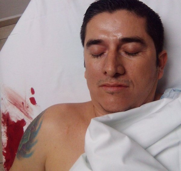 This is believed to be a photo of Elvis Gonzalez Valencia on his hospital bed.